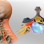 فتق دیسک گردن (Cervical Herniated Disc)